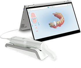 Reshaping Dental Practices with iTero 3D Scanner